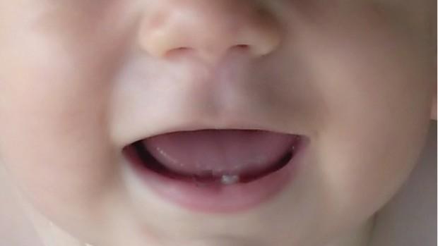 baby-teeth2